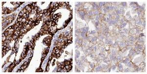 EPCAM_favourable_gene_in_ovarian_cancer_CAB055098.jpg