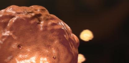 tjock livmoderslemhinna cancer