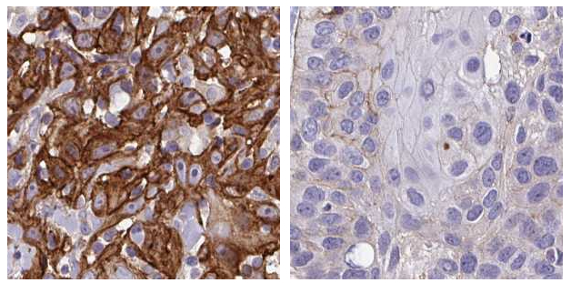 News: 792 Genes Associated with Prognosis in Head and Neck Cancer